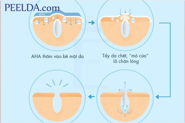 AHA là gì? Tác dụng của AHA ra sao? Cách dùng AHA hiệu quả.